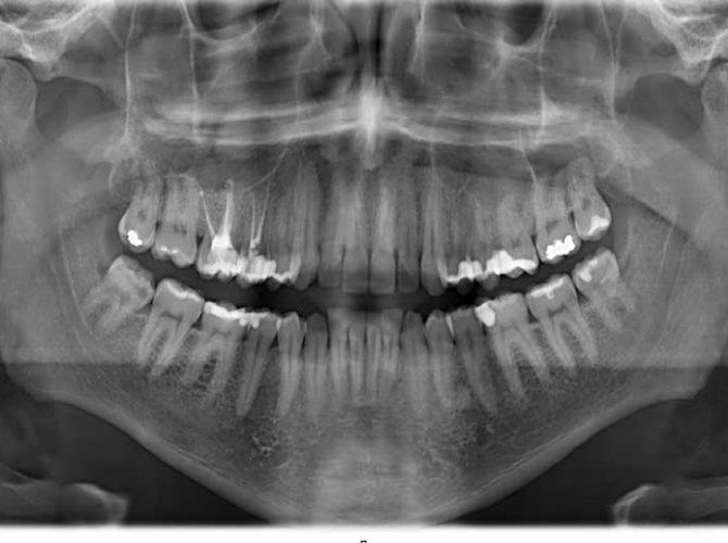 رادیوگرافی دندان ها