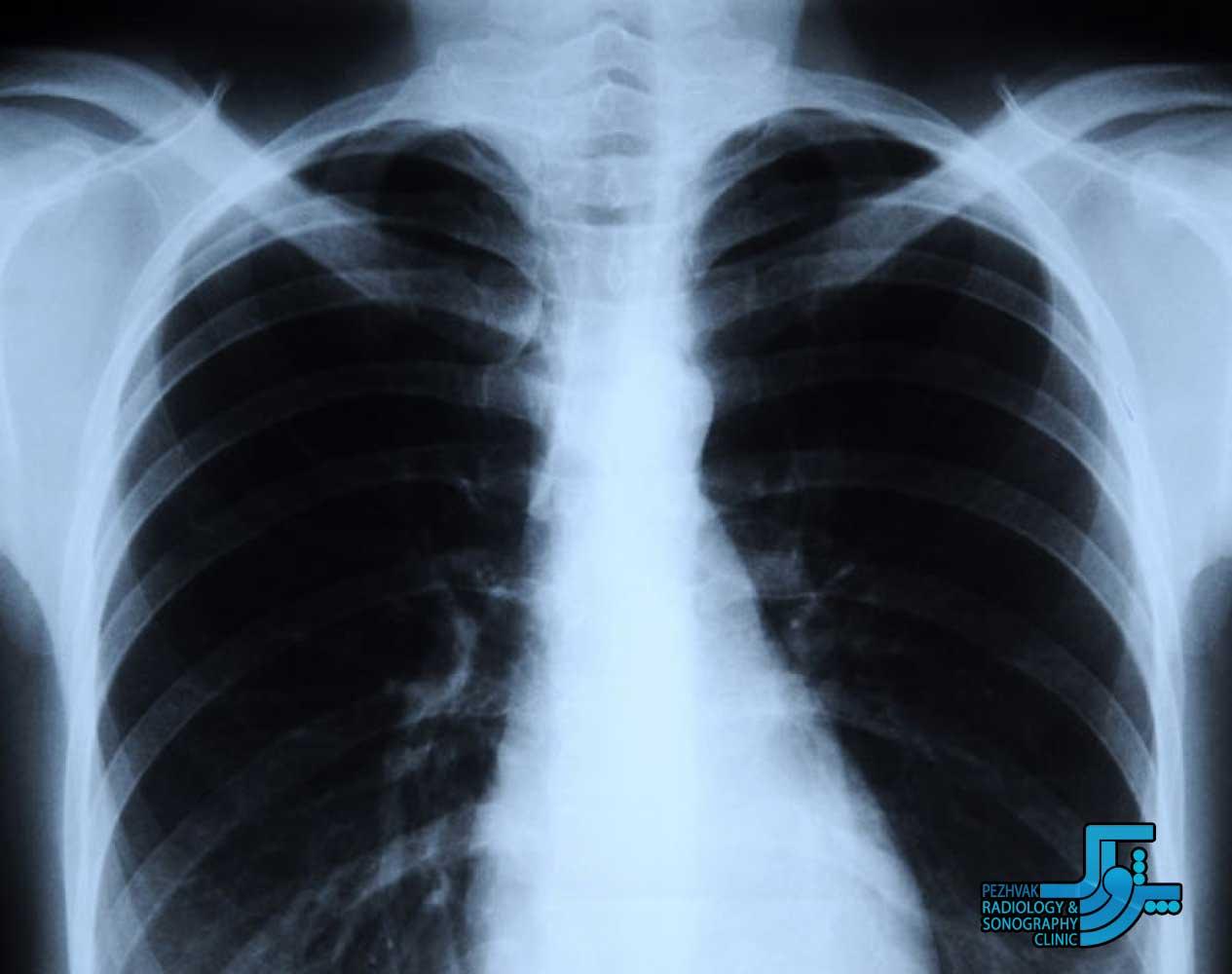 اشعه ایکس چیست